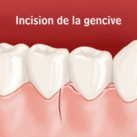 Incision de la gencive